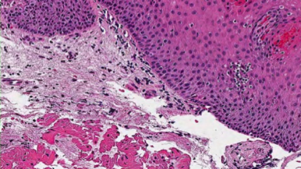 Stain of proximal esophagus (high power) taken from a biopsy.
