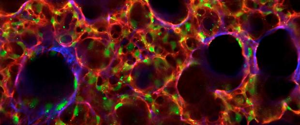 Vibratome section of alveolar network