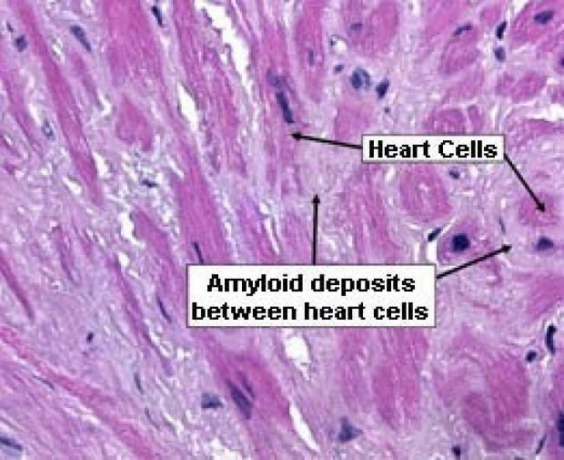 alprimaryamyloidosis-photo-heart
