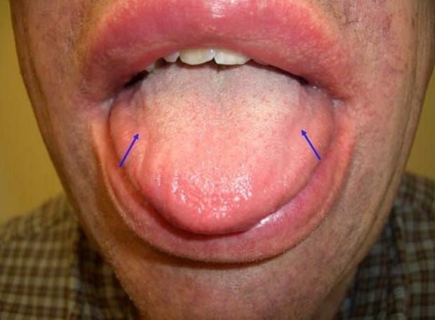 alprimaryamyloidosis-photo-tongue