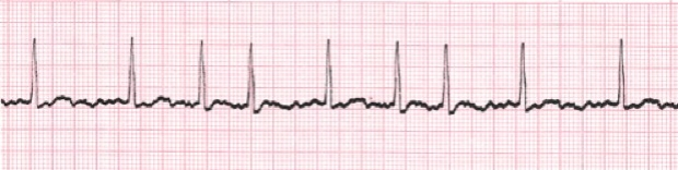 picture of heart monitoring readout