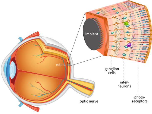 In a cross-section of a human eye, the retina appears as a thin sheet in the back of the eye. It constitutes several cell layers (ganglion cells, interneurons, and photoreceptors). The implant is attached to the surfaces of the retina facing inwards, closest to the ganglion cells.
