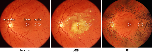 Three examples of fundus photographs of the retina. In a healthy subject, the retina is free of abnormalities. In a retina with age-related macular degeneration, yellow-white spots appear in the center. In a retina with retinitis pigmentosa, dark spots appear in the periphery.