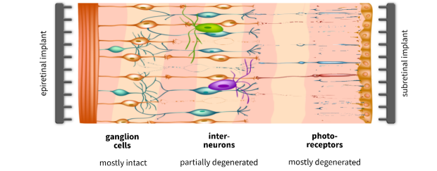 The three main layers of the retina are shown (ganglion cells, interneurons, and photoreceptors), along with two options for implant placement. Epiretinal implants are facing the ganglion cell layer, whereas subretinal implants face the photoreceptor layer.