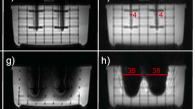 Artifact-Reduced Imaging of Biopsy Needles with 2D Multispectral Imaging