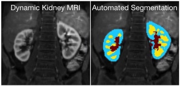 Automatic Renal Segmentation for MR Urography Using 3D-GrabCut and Random Forests