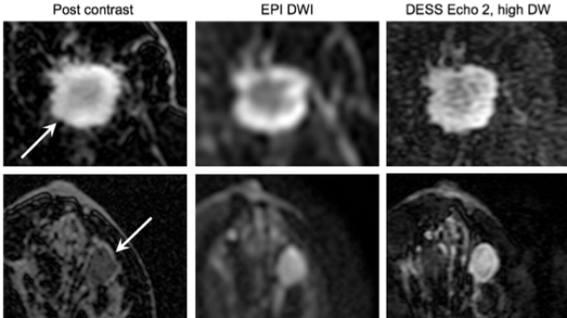 High-Resolution, 3D Diffusion-Weighted Breast MRI with DESS