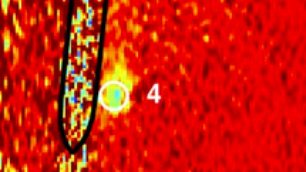 MRI Monitoring of Focused Ultrasound Sonications Near Metallic Hardware