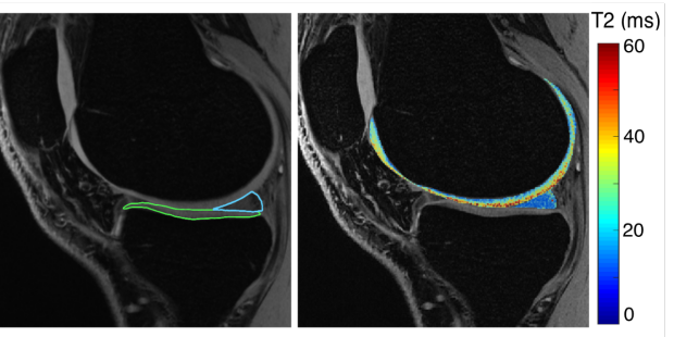 Five-Minute Knee MRI for Simultaneous Morphometry and T2 Relaxometry Using DESS