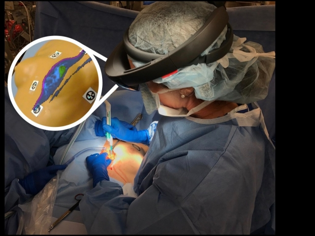 HoloLens Breast Surgical Planning Prototype