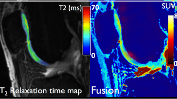 Quantitative Imaging of Bone-Cartilage Interactions in ACL-Injured Patients with PET-MRI