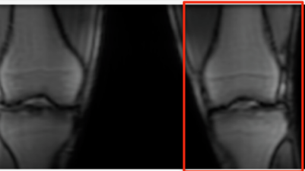 Simultaneous Bilateral Knee MR Imaging