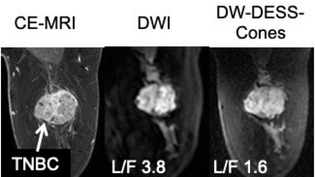 Diffusion-Weighted DESS with a 3D Cones Trajectory for Non-Contrast-Enhanced Breast MRI
