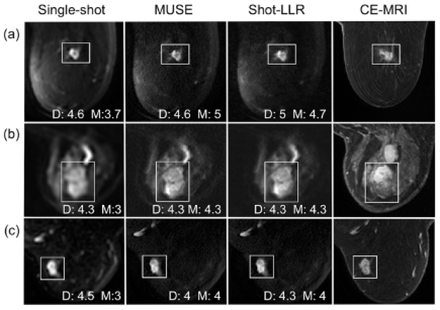 Multi-shot DWI of the breast with MUSE and shot-LLR