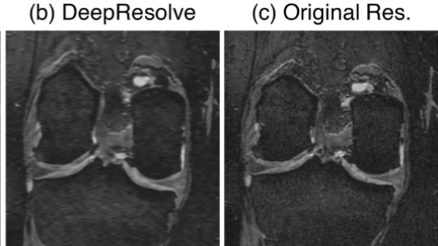 Utility of Deep Learning Super-Resolution in the Context of Osteoarthritis MRI Biomarkers