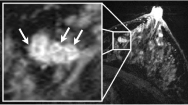 Breast MRI