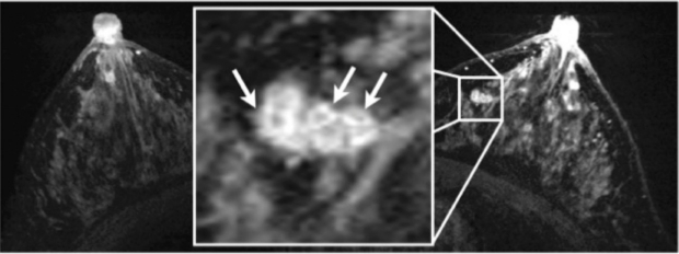 High-Resolution post-contrast Breast MRI showing tumor features