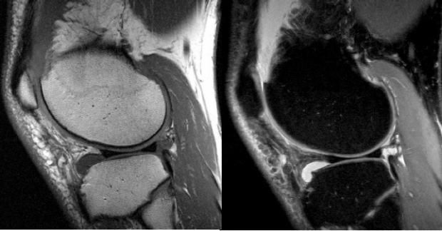 Sagittal T1-weighted and Proton-density-weighted (fat suppressed) knee images