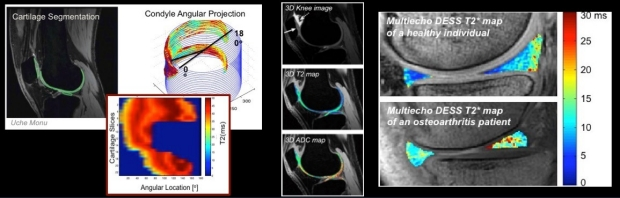 Musculoskeletal MRI Examples