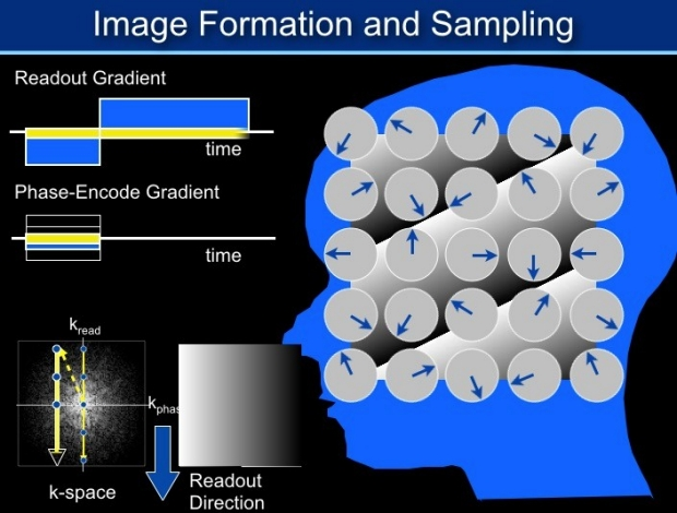 Image formation in MRI, shown graphically