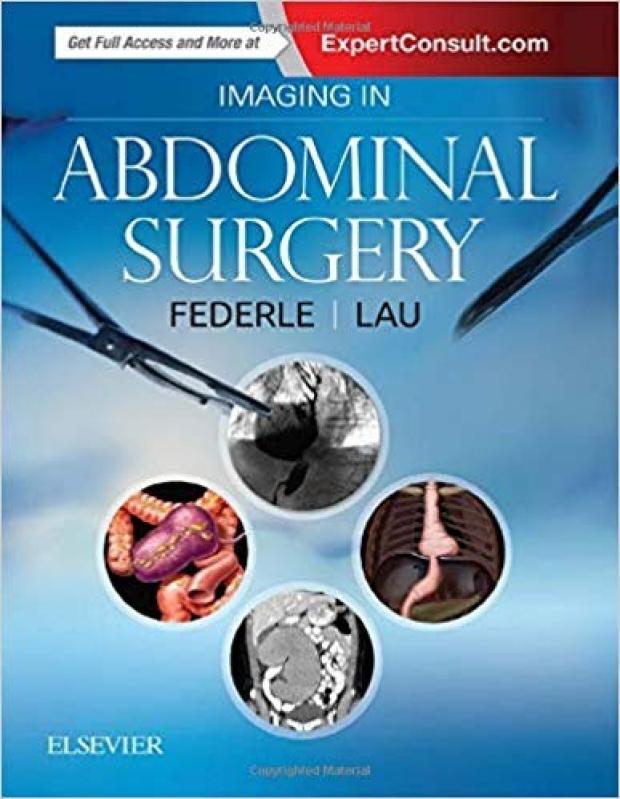 abdominal surgery