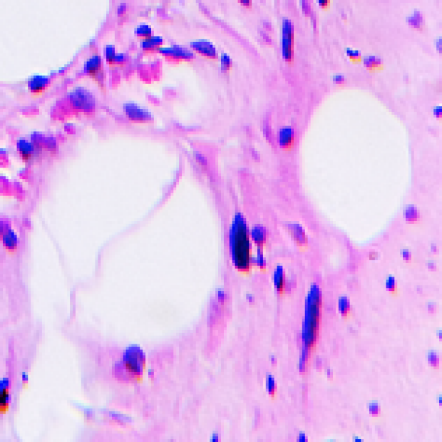 Purple cancer cells image