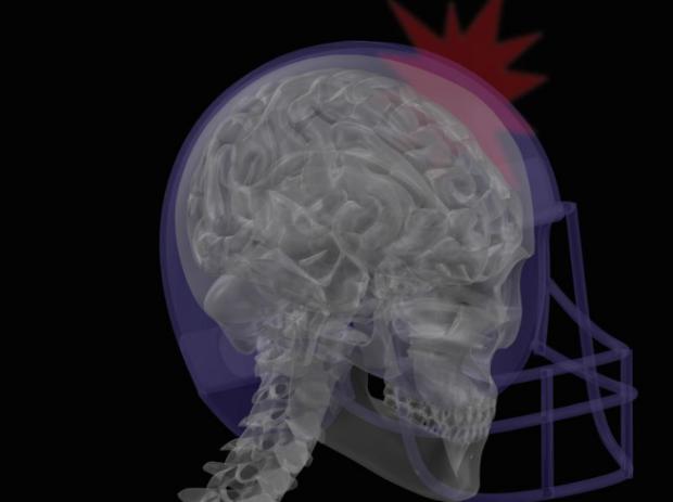 Concussion brain scan