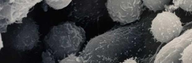 Lymphocyte homing