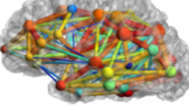 Brain Connectivity Mapping