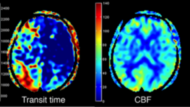 Improved ASL Perfusion Imaging