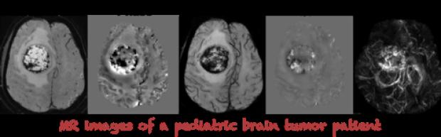 MR images of Pediatric Tumor Patients