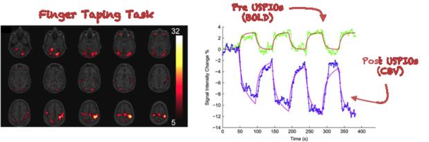 Enhanced sensitivity for fMRI
