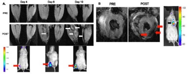 In vivo molecular MRI