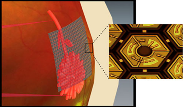 rendering of retinal implant