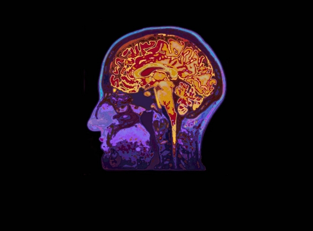 Annual Breakthroughs in Neurologic Therapies