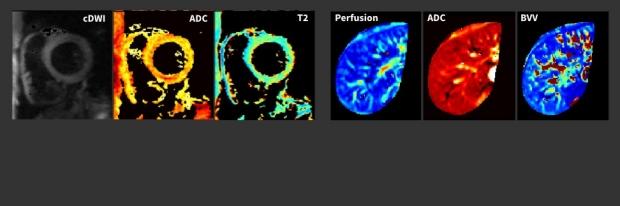 Diffusion and Perfusion