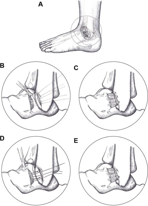 Ankle repairs
