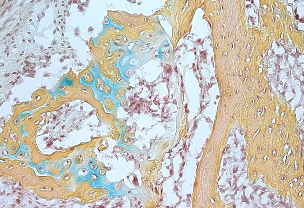 Study identifies stem cell that gives rise to new bone, cartilage in humans