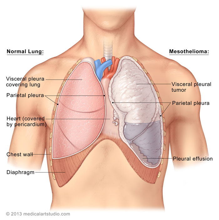 Malignant Pleural Mesothelioma Department Of Cardiothoracic