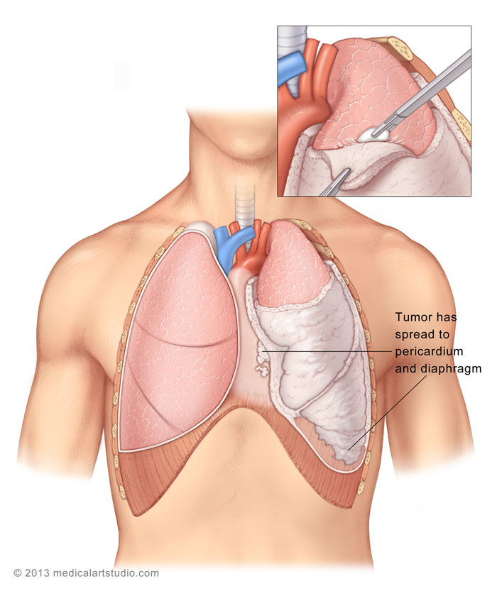 Malignant Pleural Mesothelioma | Department of Cardiothoracic ...