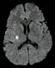 Image showing DWI positivie lesion