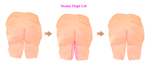 thighlift_2