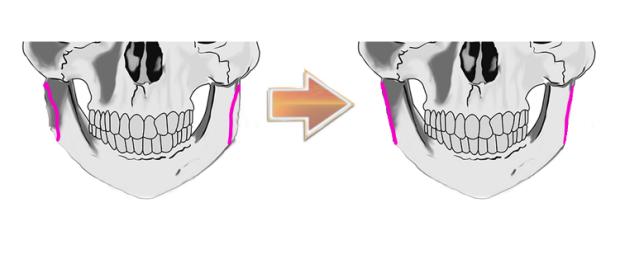 sagittal