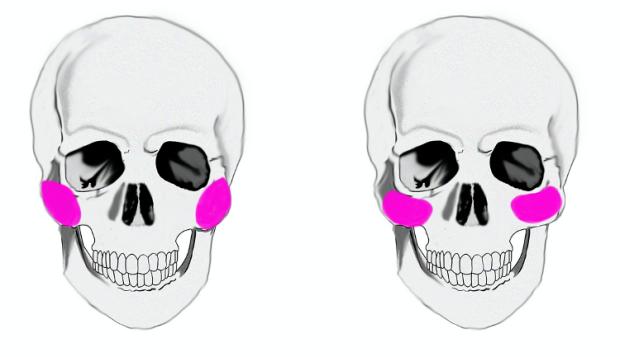 cheekimplants_skull