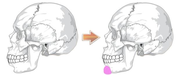 chin_implant