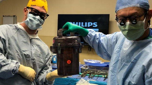 two surgeons holding donor heart in Cardiac Transport System container