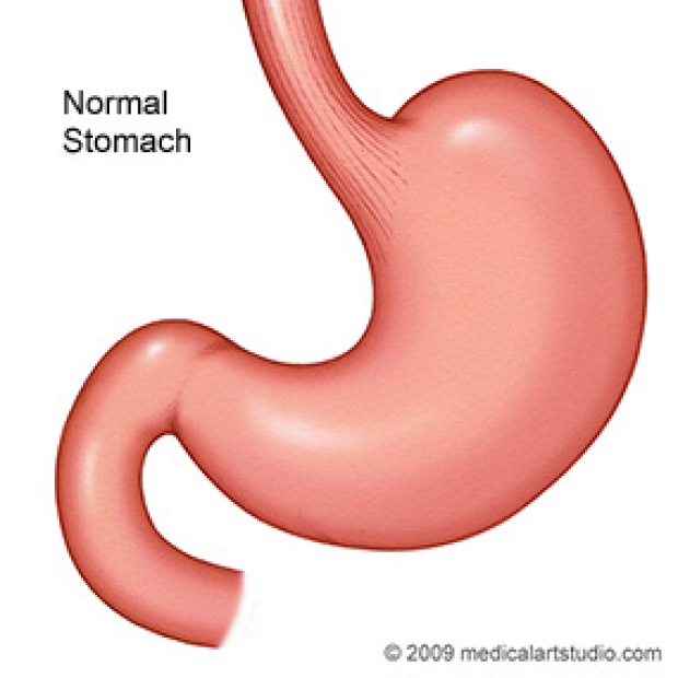 medical illustration of a normal stomach