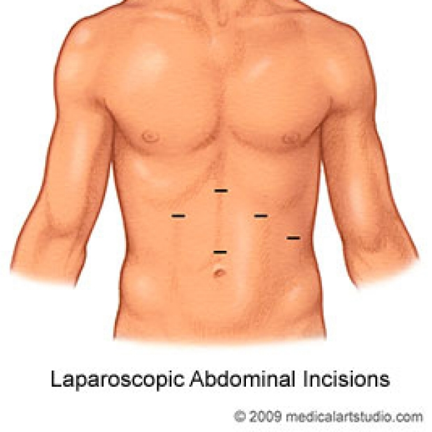 medical illustration of laparoscopic abdominal incisions