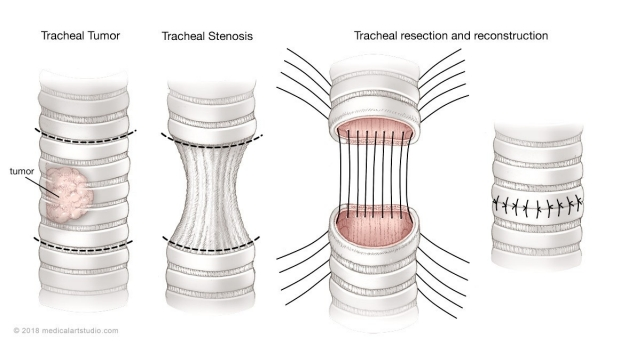 medical illustration of a tracheal resection and reconstruction