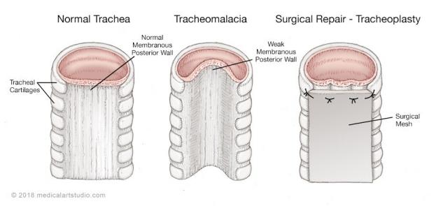 medical illustration of a tracheomalacia and tracheoplasty